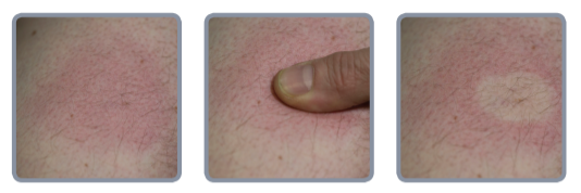 Fingertrykk-metoden for sjekk av hud