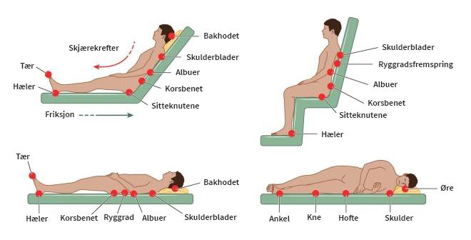 Kroppsområder utsatt for trykksår (Illustrasjon: Peter Lamb)